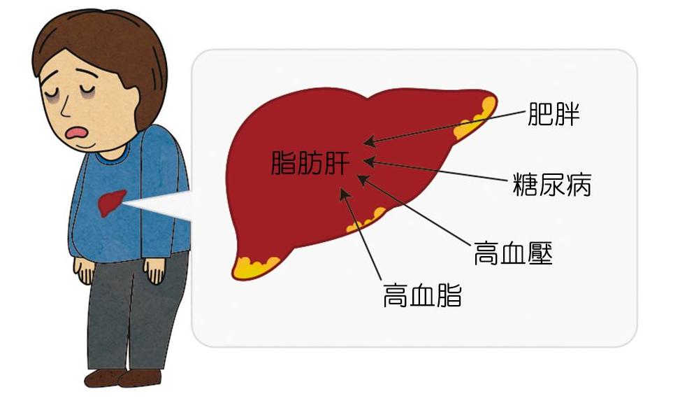 脂肪肝的病状是什么,该如何预防和治疗?
