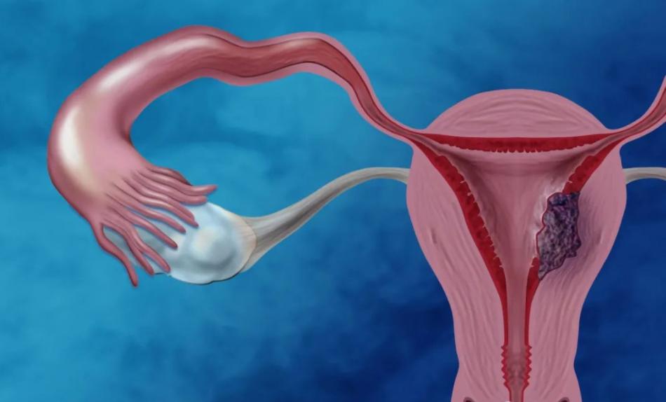妇科肿瘤的病状是什么,如何预防和治疗