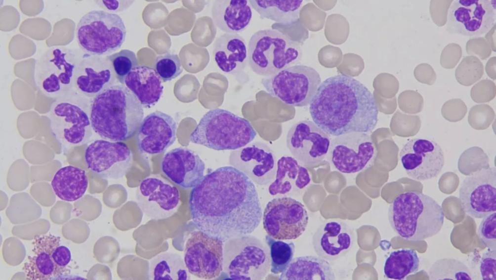 白血病的病状是什么,如何预防白血病以及怎么治疗